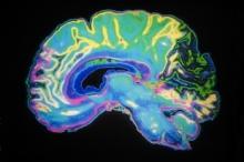 frazzled-brain