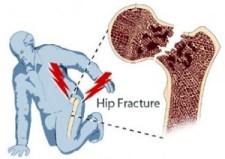 hipfracture-300x213
