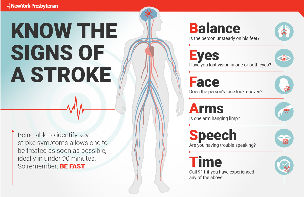 know the signs of a stroke retiree news